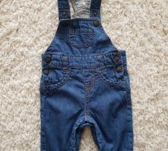 Baby treger pantalonice