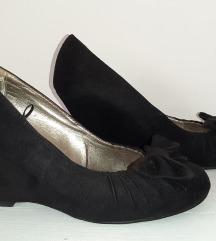 Baby Angel crne ortoped preslatke cipele sa masnom
